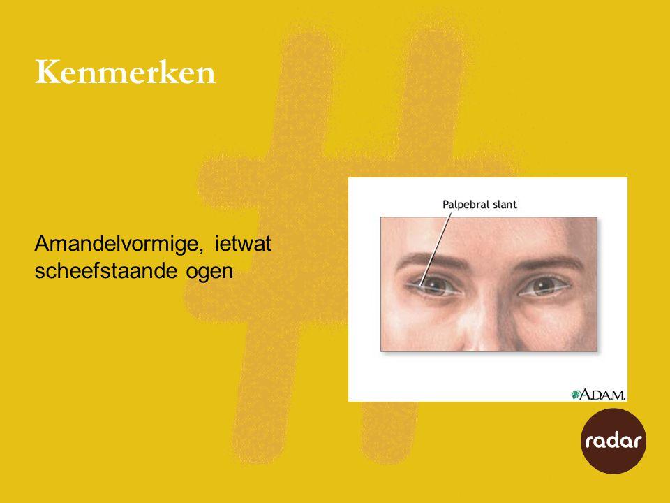 Kenmerken Amandelvormige, ietwat scheefstaande ogen