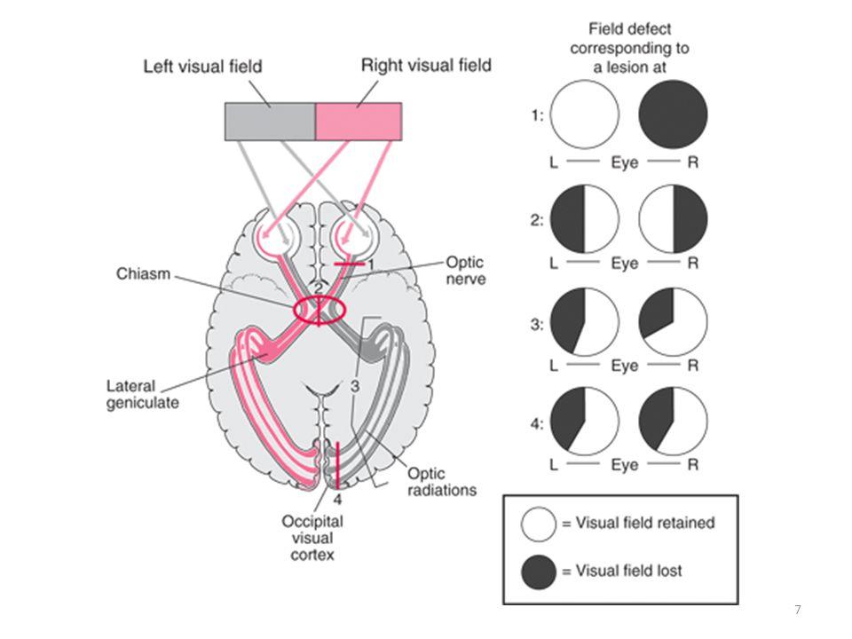 OCT OPTICAL COHERENCE TOMOGRAPHY •=Nieuwe beeldvormende techniek :hoog- resolutiedoorsneden van netvlies en oogzenuw •Gebaseerd op reflectie van een infrarode lichtbundel •Niet-invasief en sneller dan fluo-angiografie