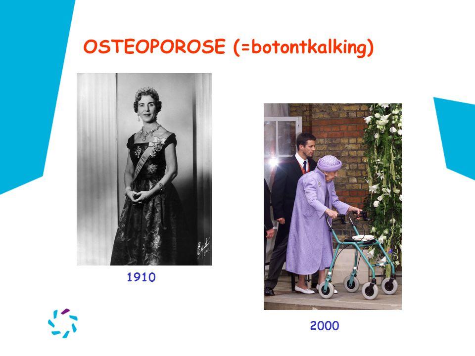 OSTEOPOROSE (=botontkalking) 1910 2000