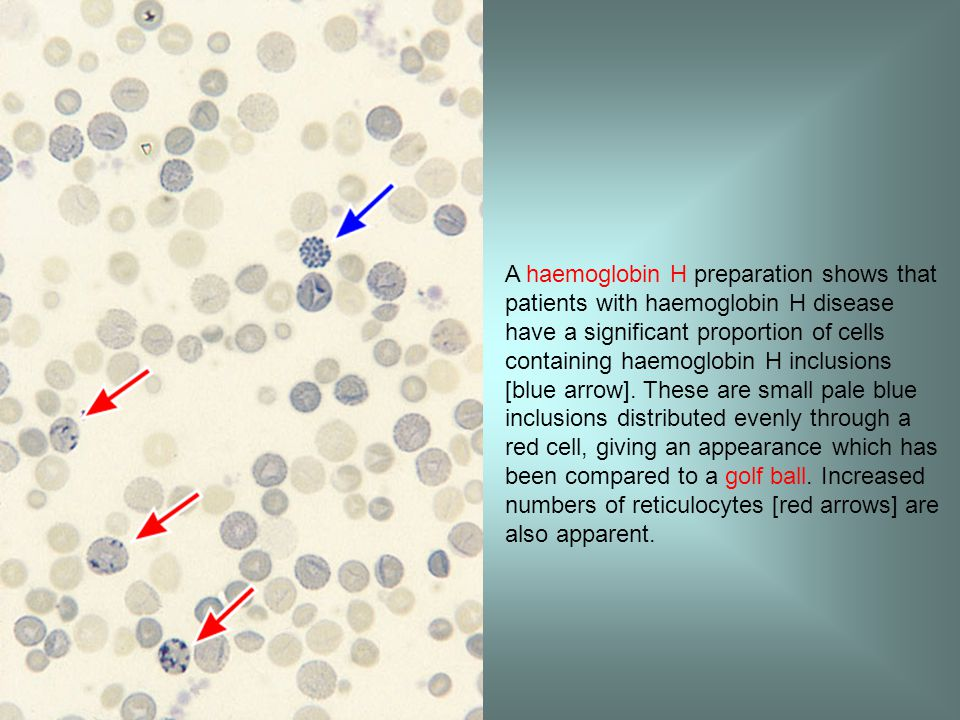 A haemoglobin H preparation shows that patients with haemoglobin H disease have a significant proportion of cells containing haemoglobin H inclusions [blue arrow].