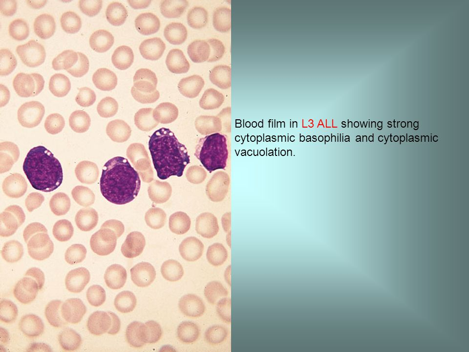 Blood film in L3 ALL showing strong cytoplasmic basophilia and cytoplasmic vacuolation.