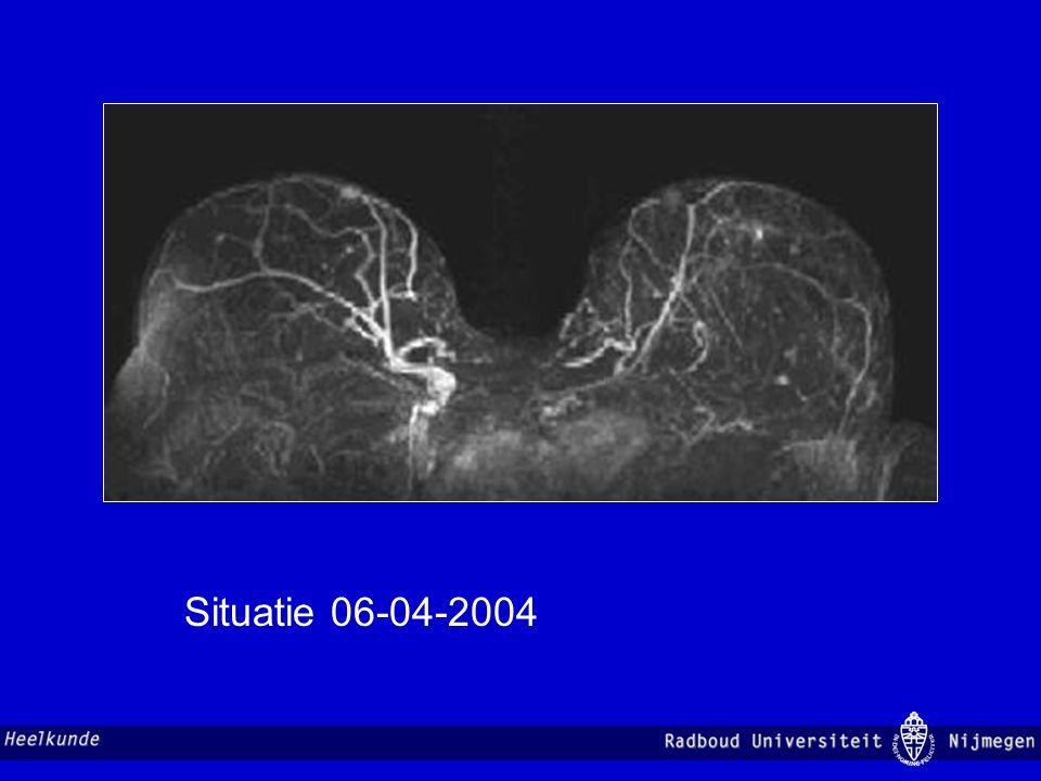 Situatie 06-04-2004