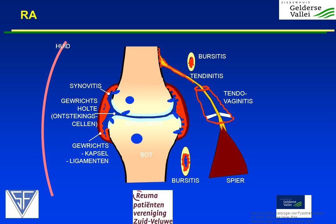 RA Nascholing Reumatologie voor Fysiotherapeuten, 01- 2008, Gelderse Vallei, Ede Reumatologen: Rood, Knijff-Dutmer, Stolk BURSITIS TENDO- VAGINITIS TE