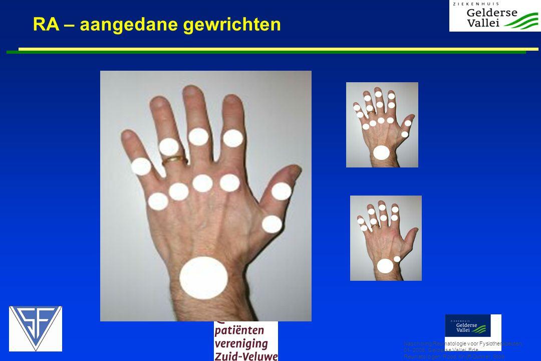 RA – aangedane gewrichten Nascholing Reumatologie voor Fysiotherapeuten, 01- 2008, Gelderse Vallei, Ede Reumatologen: Rood, Knijff-Dutmer, Stolk