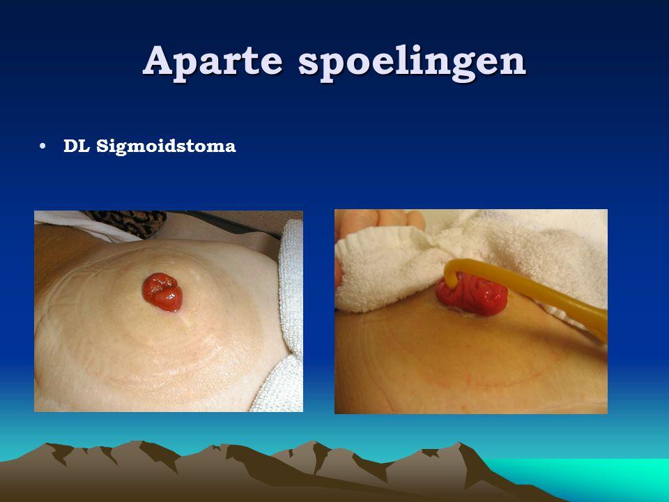 Aparte spoelingen • DL Sigmoidstoma