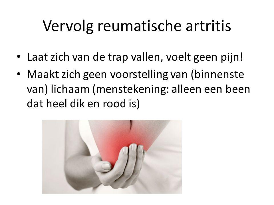 Vervolg reumatische artritis • Laat zich van de trap vallen, voelt geen pijn! • Maakt zich geen voorstelling van (binnenste van) lichaam (menstekening