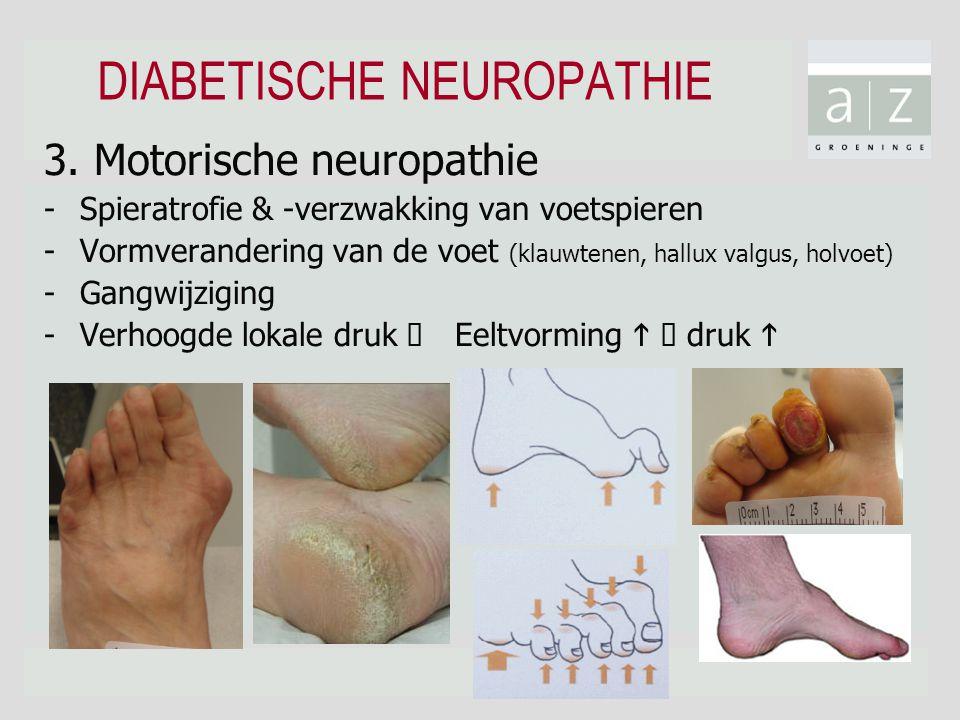 DIABETISCHE NEUROPATHIE 3. Motorische neuropathie -Spieratrofie & -verzwakking van voetspieren -Vormverandering van de voet (klauwtenen, hallux valgus