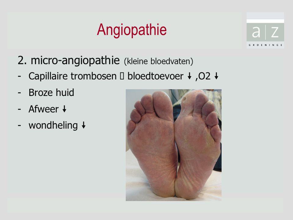"Angiopathie 2. micro-angiopathie (kleine bloedvaten) -Capillaire trombosen  bloedtoevoer "",O2 "" -Broze huid -Afweer "" -wondheling """