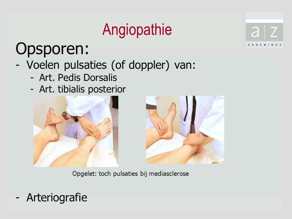 Angiopathie Opsporen: -Voelen pulsaties (of doppler) van: -Art. Pedis Dorsalis -Art. tibialis posterior - Arteriografie Opgelet: toch pulsaties bij me