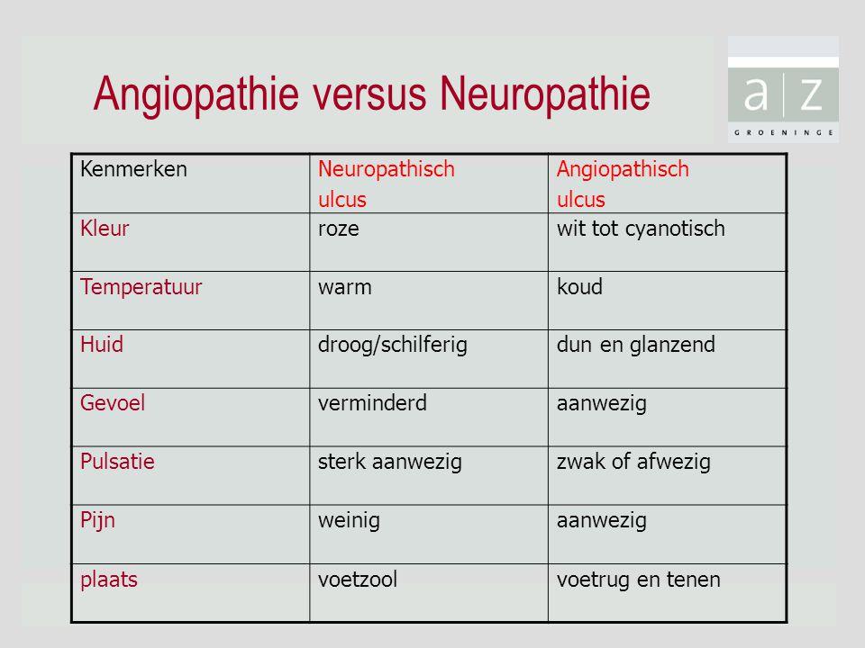 Angiopathie versus Neuropathie Kenmerken Neuropathisch ulcus Angiopathisch ulcus Kleur roze wit tot cyanotisch Temperatuur warm koud Huid droog/schilf