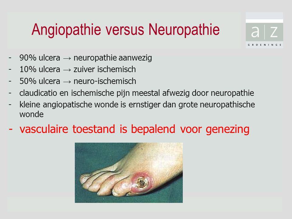 Angiopathie versus Neuropathie -90% ulcera → neuropathie aanwezig -10% ulcera → zuiver ischemisch -50% ulcera → neuro-ischemisch -claudicatio en ische