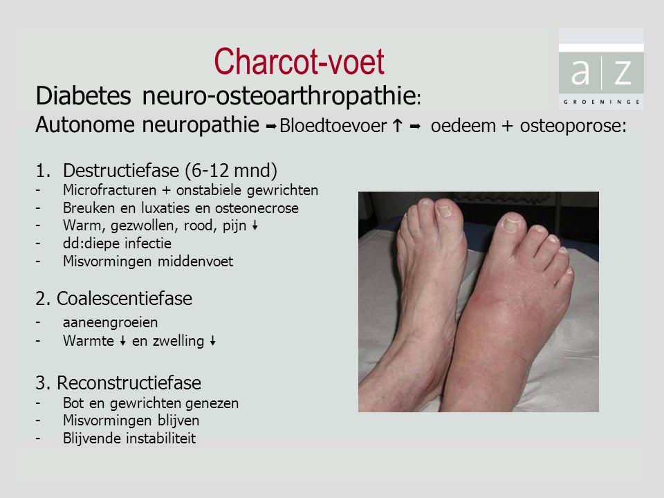 Charcot-voet Diabetes neuro-osteoarthropathie : Autonome neuropathie  Bloedtoevoer   oedeem + osteoporose: 1.Destructiefase (6-12 mnd) -Microfract