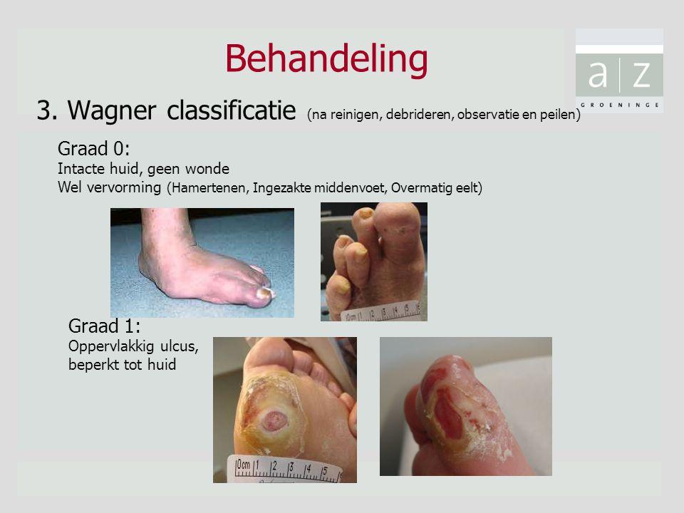 Behandeling 3. Wagner classificatie (na reinigen, debrideren, observatie en peilen) Graad 0: Intacte huid, geen wonde Wel vervorming (Hamertenen, Inge
