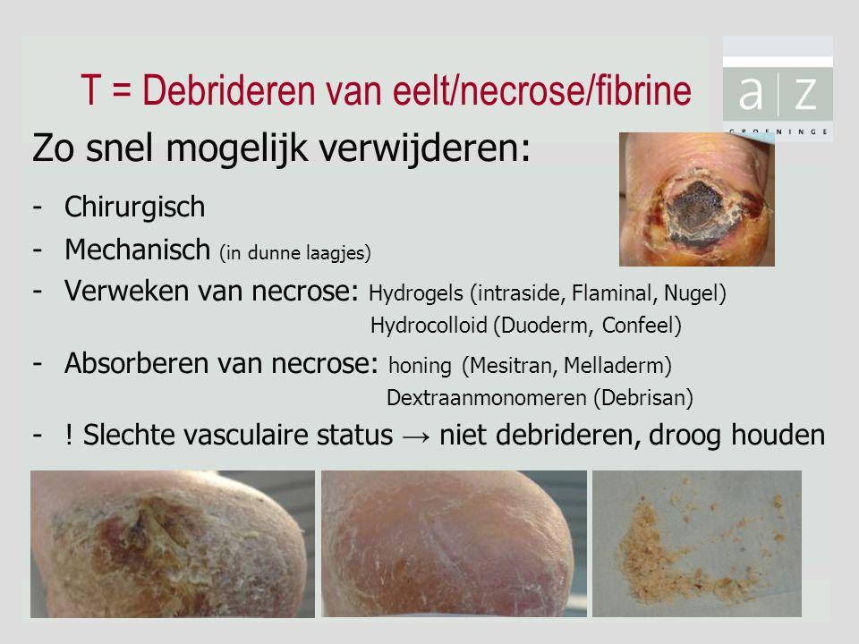 T = Debrideren van eelt/necrose/fibrine Zo snel mogelijk verwijderen: - Chirurgisch -Mechanisch (in dunne laagjes) -Verweken van necrose: Hydrogels (intraside, Flaminal, Nugel) Hydrocolloid (Duoderm, Confeel) -Absorberen van necrose: honing (Mesitran, Melladerm) Dextraanmonomeren (Debrisan) -.