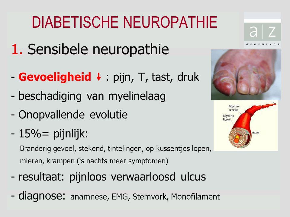 """DIABETISCHE NEUROPATHIE 1. Sensibele neuropathie - Gevoeligheid """" : pijn, T, tast, druk - beschadiging van myelinelaag - Onopvallende evolutie - 15%="""