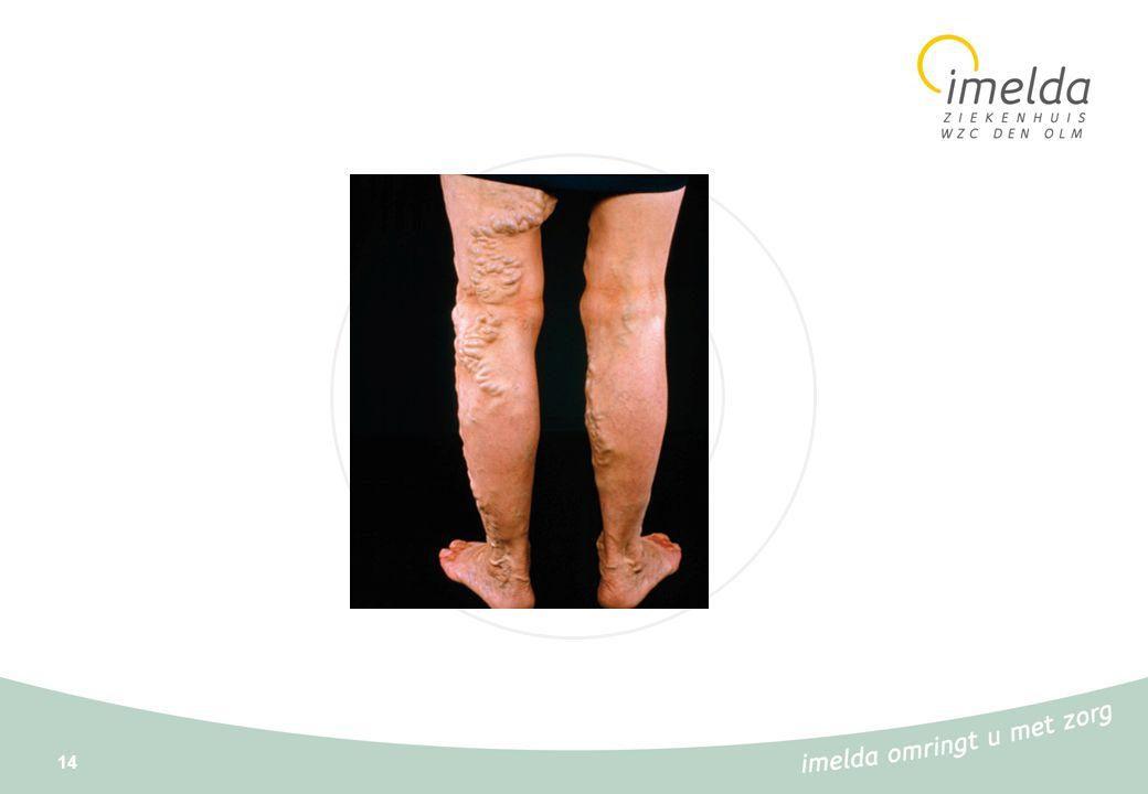 15 Veneuze ulcera : algemeen Veneuze insufficiëntie Congenitale klepafwijkingen/ zwakte van de venenwand/vnl.