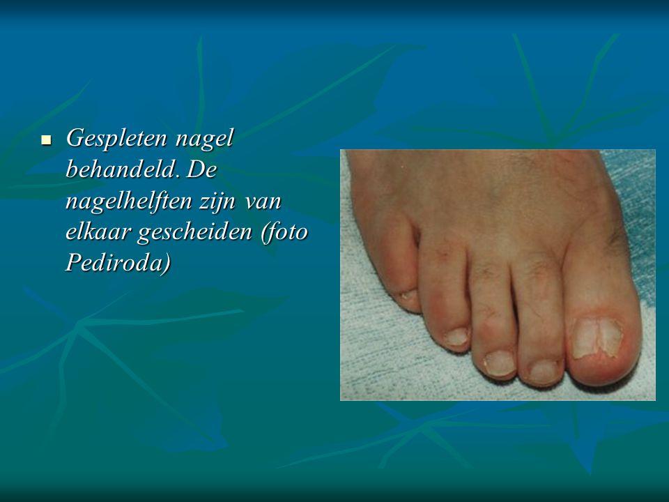 Gespleten nagel behandeld. De nagelhelften zijn van elkaar gescheiden (foto Pediroda)