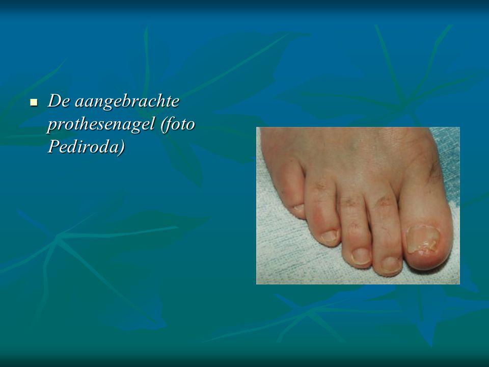  De aangebrachte prothesenagel (foto Pediroda)