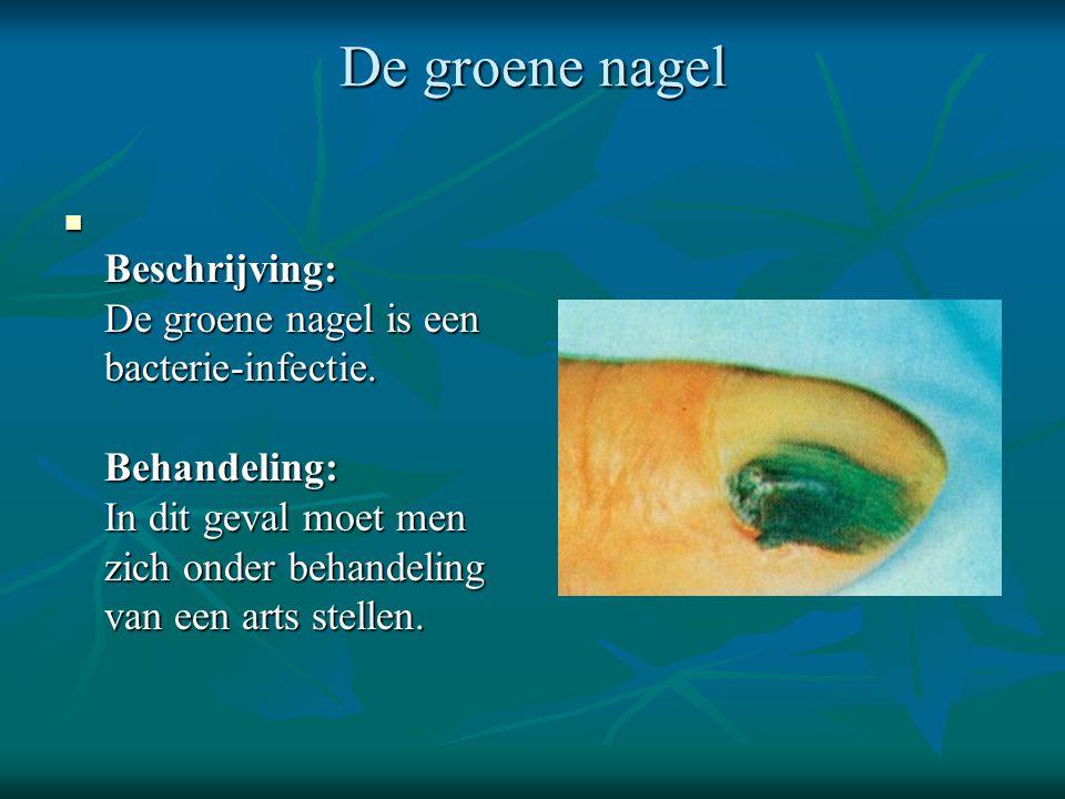 De groene nagel  Beschrijving: De groene nagel is een bacterie-infectie. Behandeling: In dit geval moet men zich onder behandeling van een arts stell