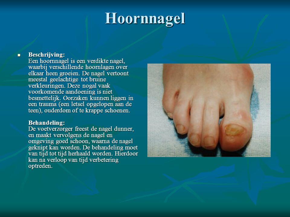 Hoornnagel  Beschrijving: Een hoornnagel is een verdikte nagel, waarbij verschillende hoornlagen over elkaar heen groeien. De nagel vertoont meestal