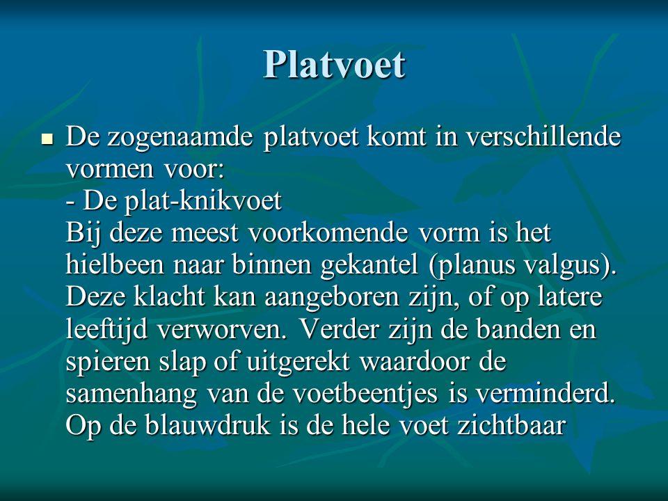 Platvoet  De zogenaamde platvoet komt in verschillende vormen voor: - De plat-knikvoet Bij deze meest voorkomende vorm is het hielbeen naar binnen ge