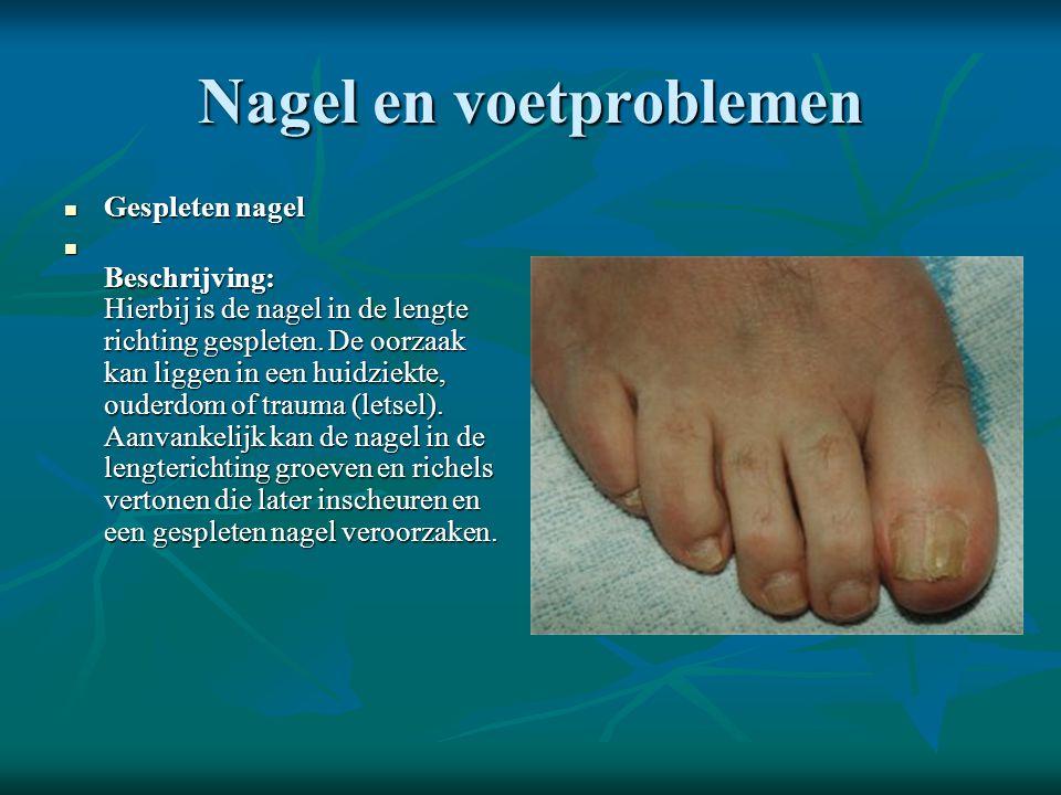 Nagel en voetproblemen  Gespleten nagel  Beschrijving: Hierbij is de nagel in de lengte richting gespleten. De oorzaak kan liggen in een huidziekte,
