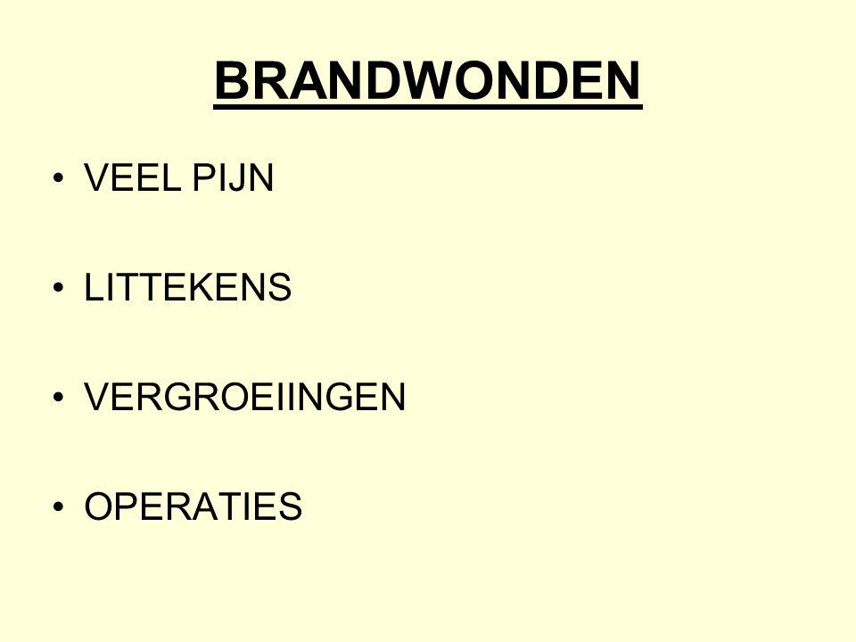 BRANDWONDEN •VEEL PIJN •LITTEKENS •VERGROEIINGEN •OPERATIES