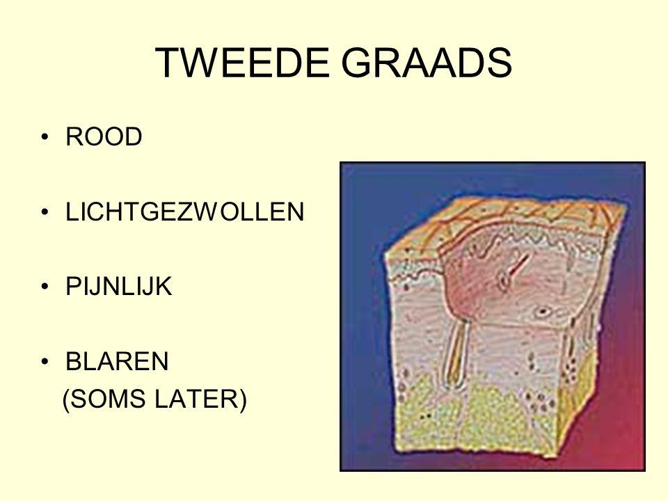 TWEEDE GRAADS •ROOD •LICHTGEZWOLLEN •PIJNLIJK •BLAREN (SOMS LATER)
