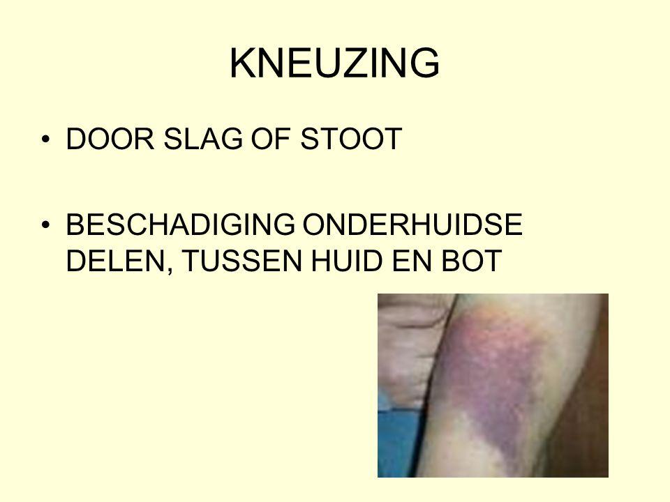KNEUZING •DOOR SLAG OF STOOT •BESCHADIGING ONDERHUIDSE DELEN, TUSSEN HUID EN BOT