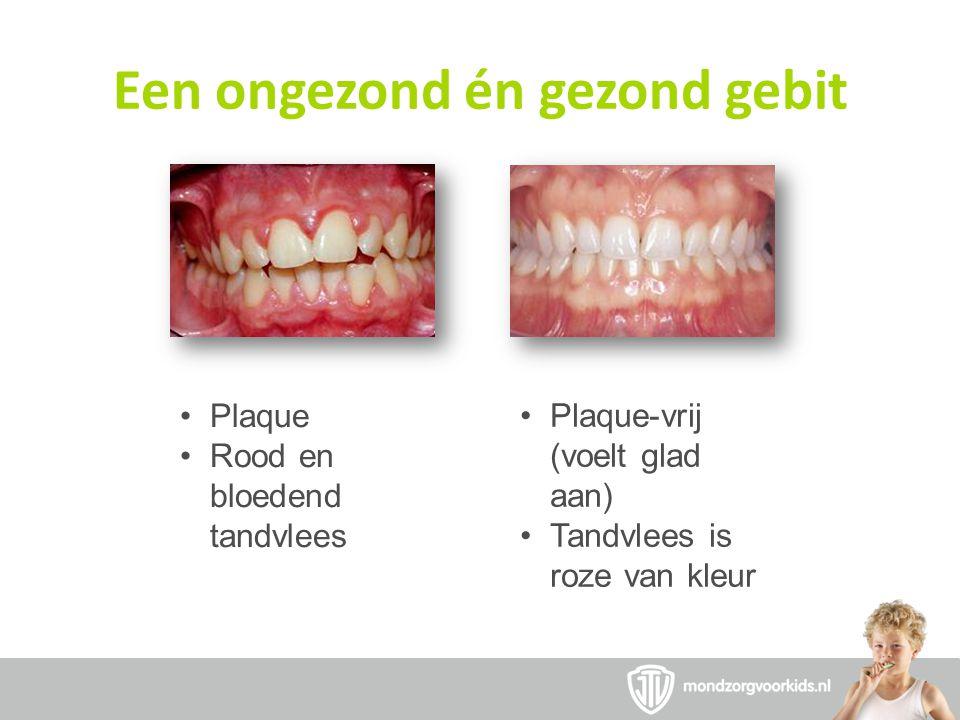 Een ongezond én gezond gebit •Plaque •Rood en bloedend tandvlees •Plaque-vrij (voelt glad aan) •Tandvlees is roze van kleur