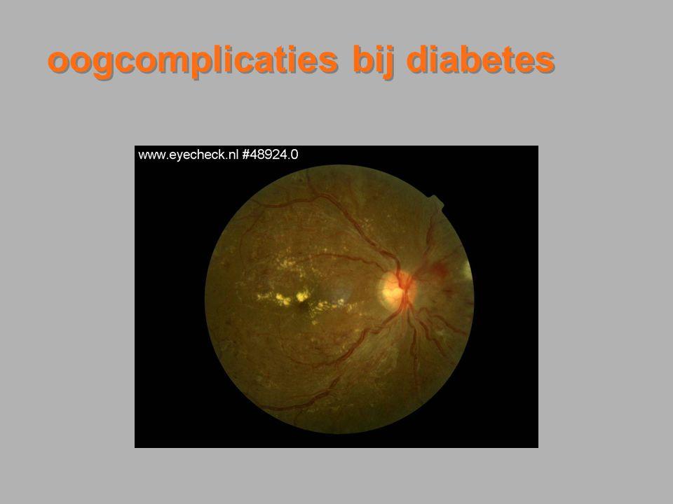 Nationale Diabetes Dag Congres 20 maart 2008 Hoeveel groter is de kans dat een diabeet blind wordt dan een niet diabeet.
