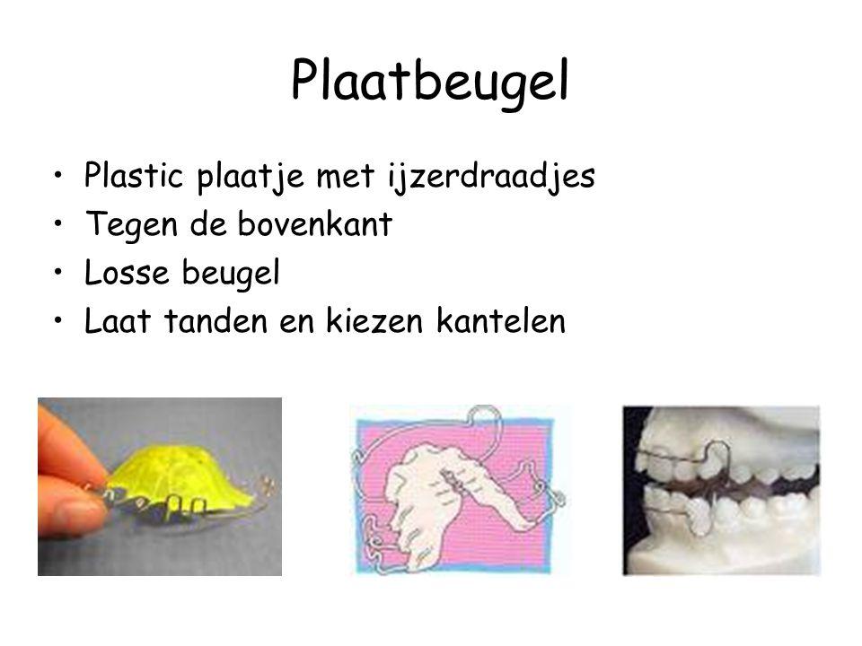 Plaatbeugel •Plastic plaatje met ijzerdraadjes •Tegen de bovenkant •Losse beugel •Laat tanden en kiezen kantelen