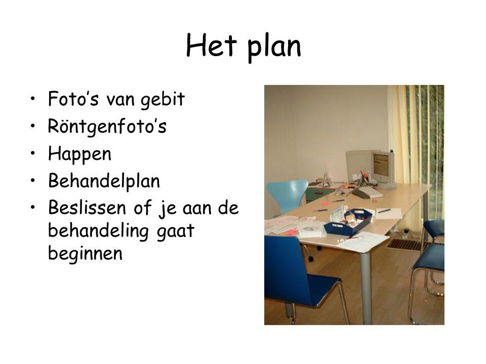 Het plan •Foto's van gebit •Röntgenfoto's •Happen •Behandelplan •Beslissen of je aan de behandeling gaat beginnen