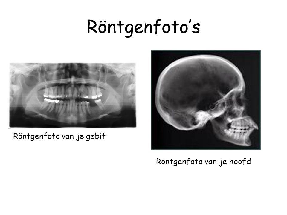 Röntgenfoto's Röntgenfoto van je gebit Röntgenfoto van je hoofd