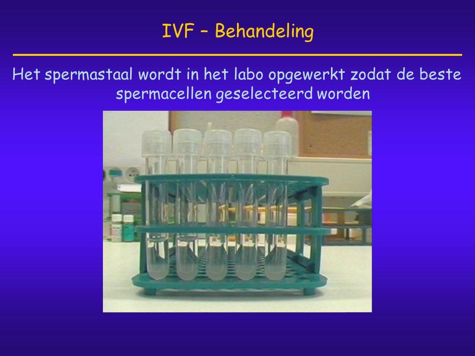 Het spermastaal wordt in het labo opgewerkt zodat de beste spermacellen geselecteerd worden IVF – Behandeling