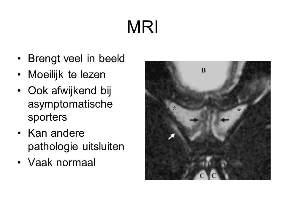 MRI •Brengt veel in beeld •Moeilijk te lezen •Ook afwijkend bij asymptomatische sporters •Kan andere pathologie uitsluiten •Vaak normaal