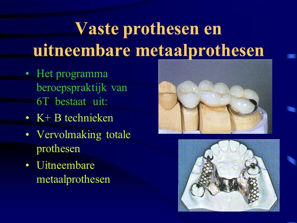 •Het programma praktijk 5 T omvat voornamelijk het vervaardigen van: Uitneembare totale en partiële prothesen en de voorbereidingen voor kroon en brugwerk UITNEEMBARE PROTHESEN