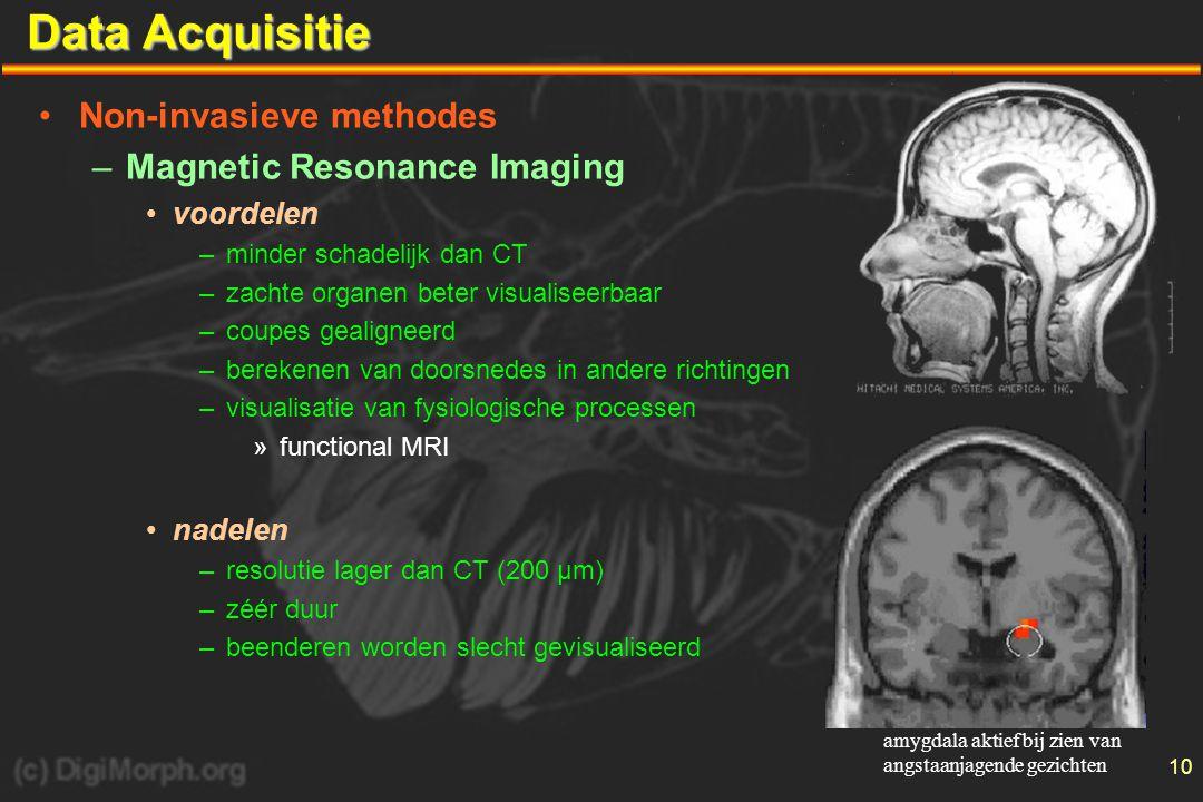 11 Data Acquisitie •Non-invasieve methodes –functional Magnetic Resonance Imaging •principe –detectie van verplaatsing van Fe-atomen in hemoglobine van bloed –steunt op haemodynamische respons »activatie van hersenzone  verbruik van O 2 »fysiologische respons  méér bloed naar die zone •toepassing –studie van fysiologische werking van hersenen »visualisatie van denkprocessen –topografische lokalisatie »via grafische 3D-reconstructies