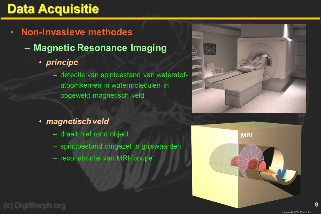 9 Data Acquisitie •Non-invasieve methodes –Magnetic Resonance Imaging •principe –detectie van spintoestand van waterstof- atoomkernen in watermoleculen in opgewekt magnetisch veld •magnetisch veld –draait niet rond object –spinttoestand omgezet in grijswaarden –reconstructie van MRI-'coupe'