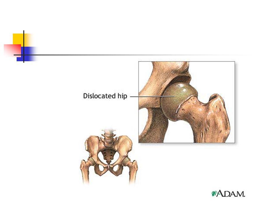Screening DDH  Diagnose op latere leeftijd morbiditeit stijgt  Diagnose zo vroeg mogelijk !!