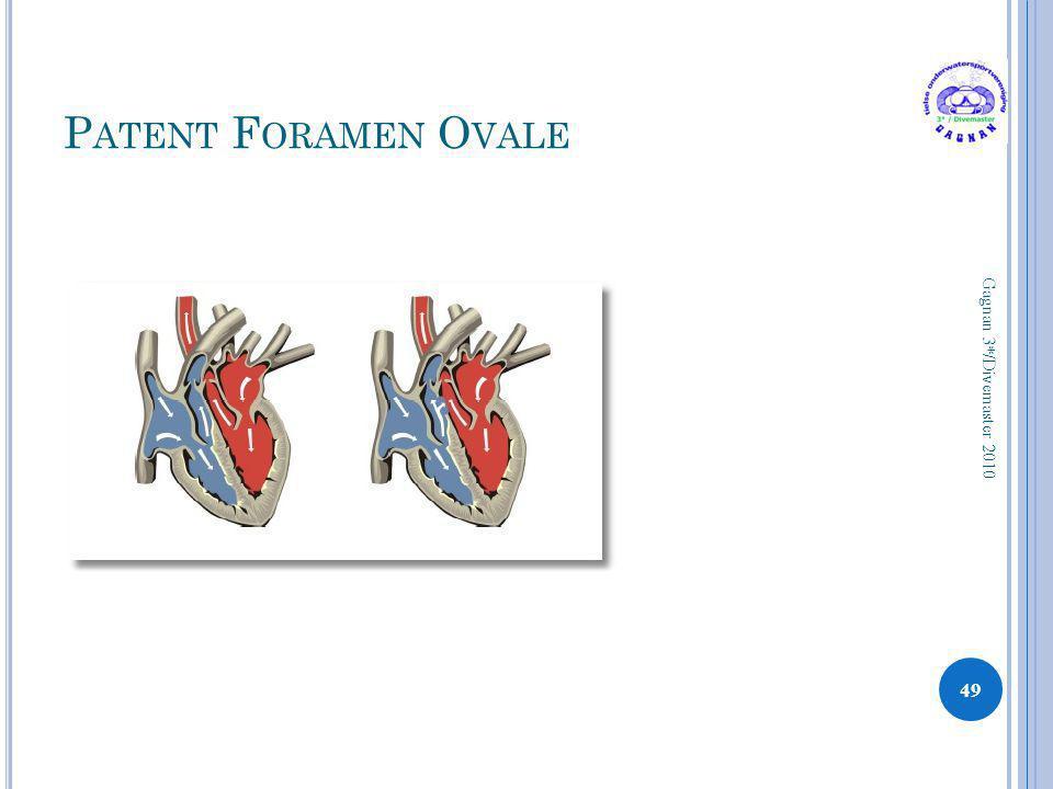 P ATENT F ORAMEN O VALE 49 Gagnan 3*/Divemaster 2010