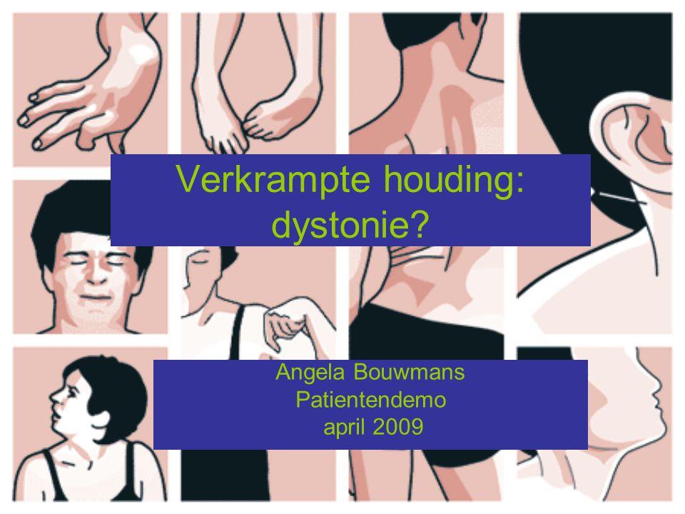 Inleiding dystonie Hyperkinetische bewegingsstoornis waarbij onwillekeurige, stereotype en relatief langzame spiercontracties leiden tot abnormale houdingen en bewegingen van de aangedane lichaamsdelen