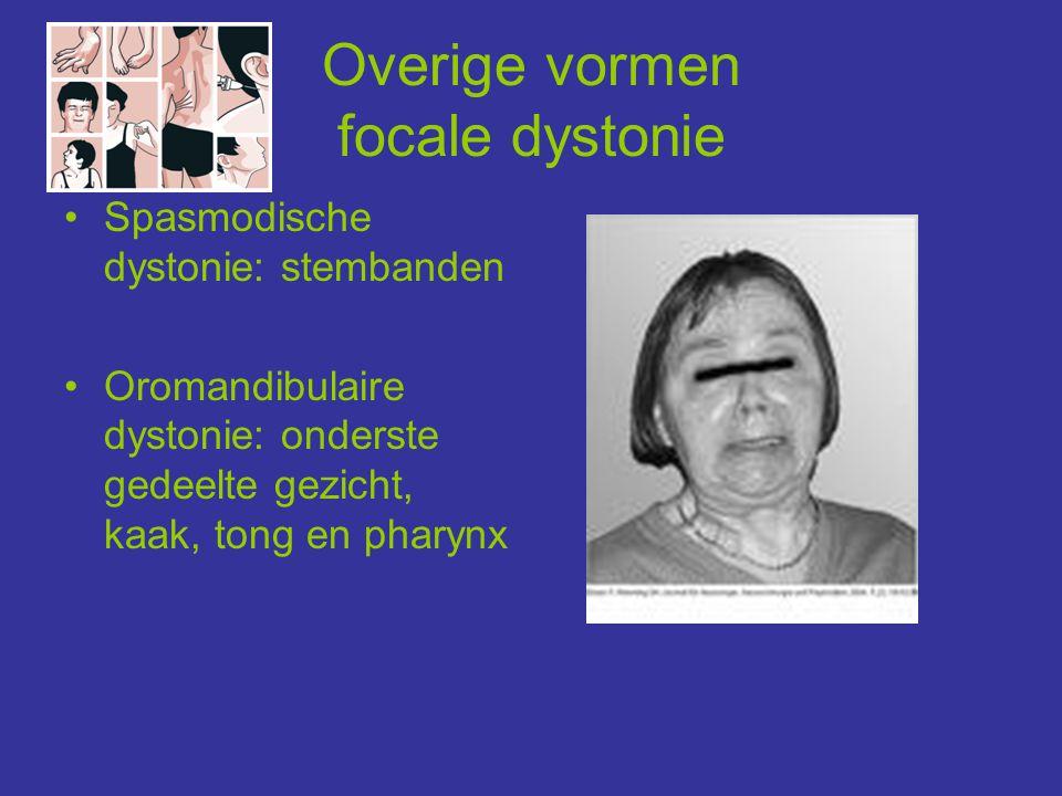 Overige vormen focale dystonie •Spasmodische dystonie: stembanden •Oromandibulaire dystonie: onderste gedeelte gezicht, kaak, tong en pharynx