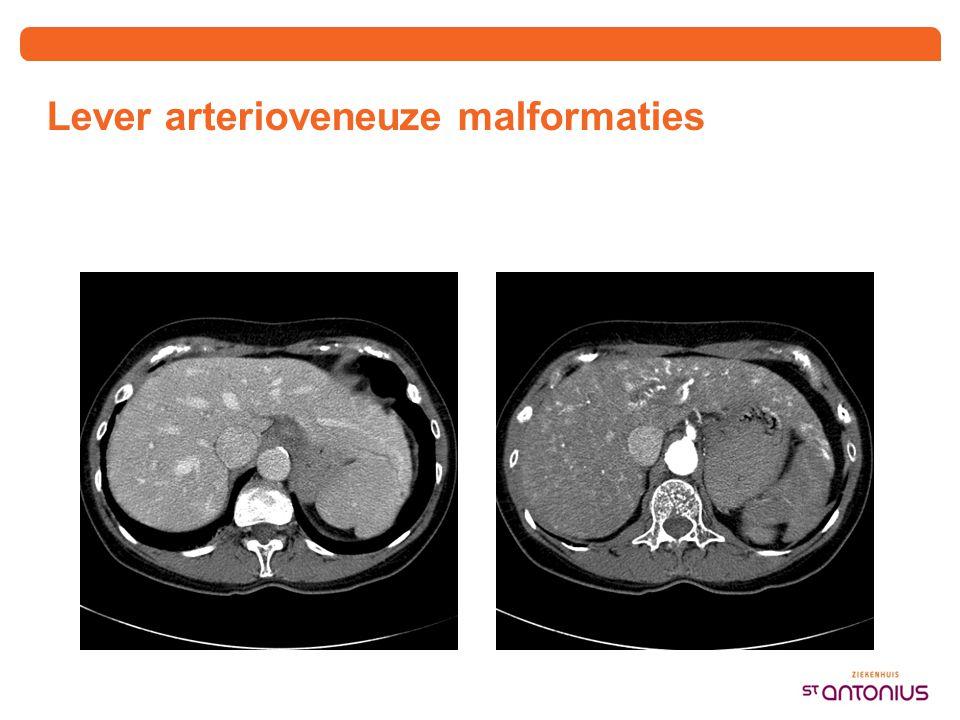Lever arterioveneuze malformaties