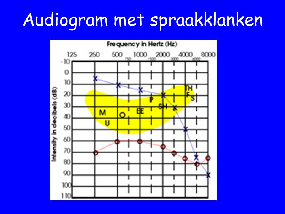 Audiogram met spraakklanken