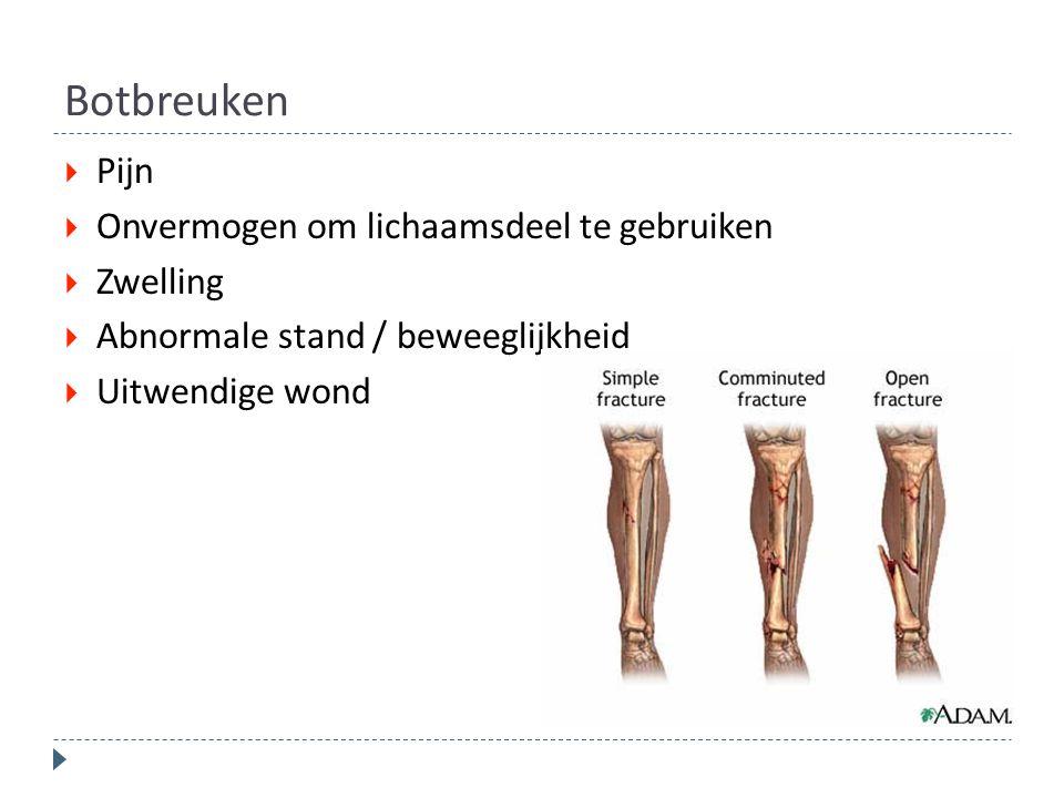 Botbreuken  Pijn  Onvermogen om lichaamsdeel te gebruiken  Zwelling  Abnormale stand / beweeglijkheid  Uitwendige wond