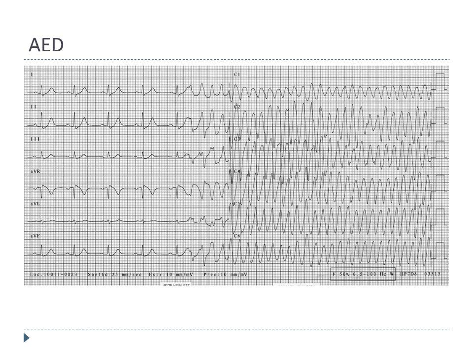 AED  Automatische Externe Defibrillator  Alleen bij kamerfibrilleren!  Iedereen mag AED bedienen