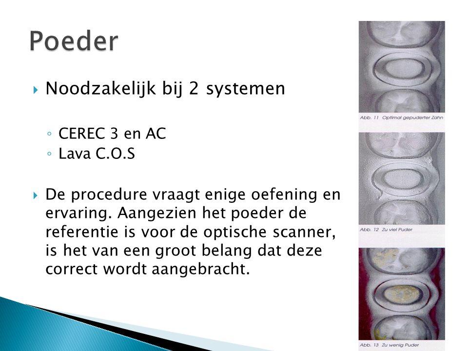  Noodzakelijk bij 2 systemen ◦ CEREC 3 en AC ◦ Lava C.O.S  De procedure vraagt enige oefening en ervaring. Aangezien het poeder de referentie is voo