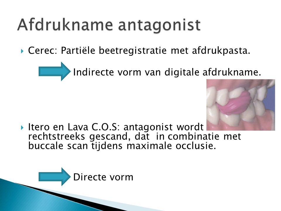  Cerec: Partiële beetregistratie met afdrukpasta. Indirecte vorm van digitale afdrukname.  Itero en Lava C.O.S: antagonist wordt rechtstreeks gescan