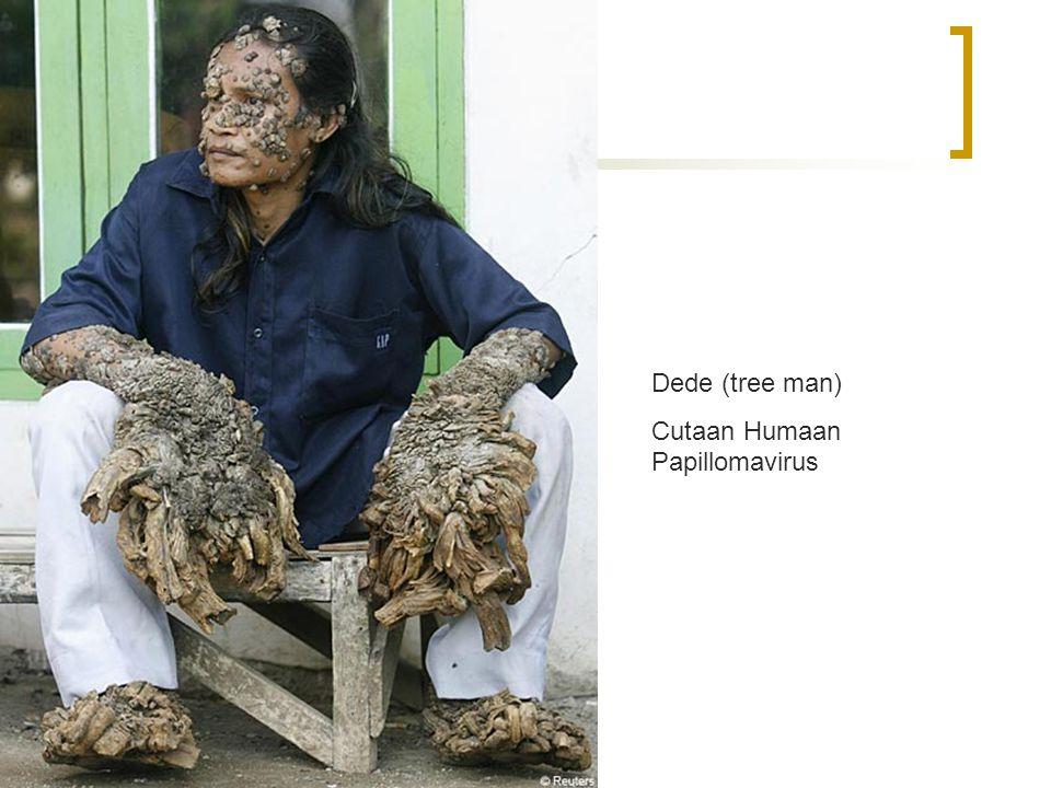 Cervixcarcinoom  Verschillende types HPV Dede (tree man) Cutaan Humaan Papillomavirus
